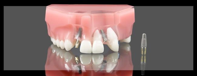 מעבדות וטכנאי שיניים