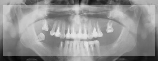 מכוני צילום שיניים