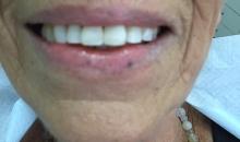 דוקטור יוסף לרבה רופא שיניים - מרפאת שיניים בירושלים